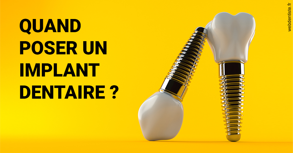 https://www.cabinet-lobot.fr/Les implants 2