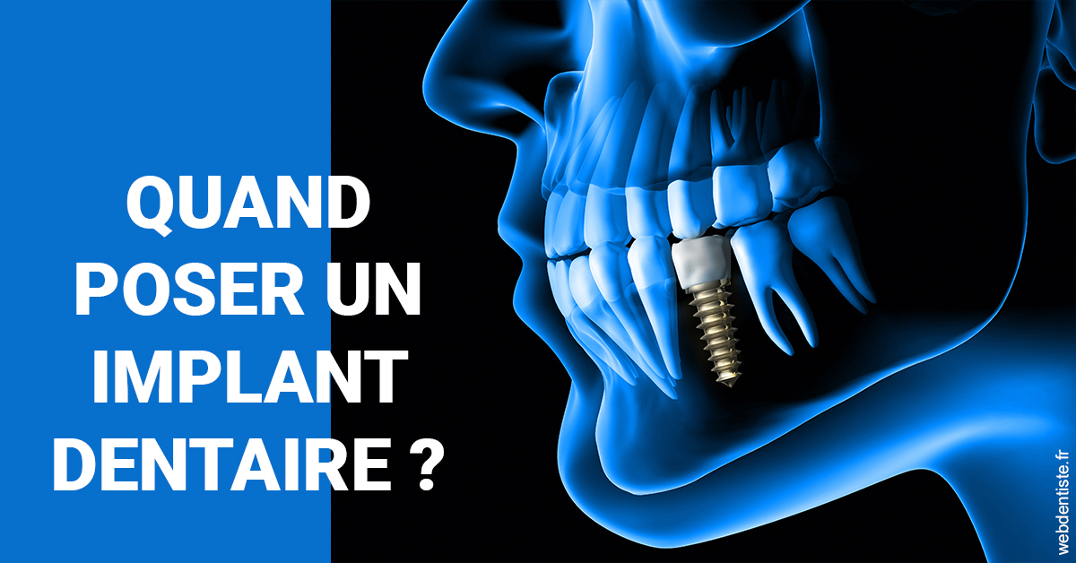 https://www.cabinet-lobot.fr/Les implants 1